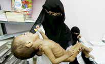 بانک جهانی: ۷۰ درصد ساکنان یمن با خطر گرسنگی مواجه هستند